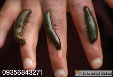 پرورش زالو Breeding leeches
